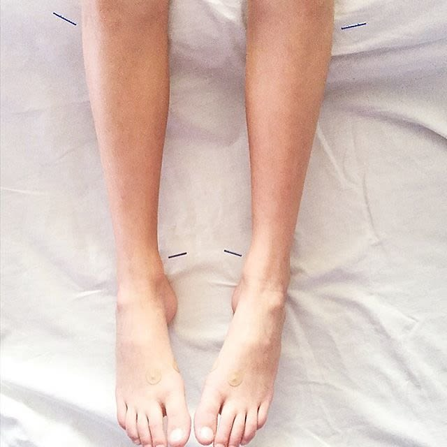 Weight-Loss Plateau? Try Acupuncture!