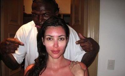 Kim Kardashian sunburn